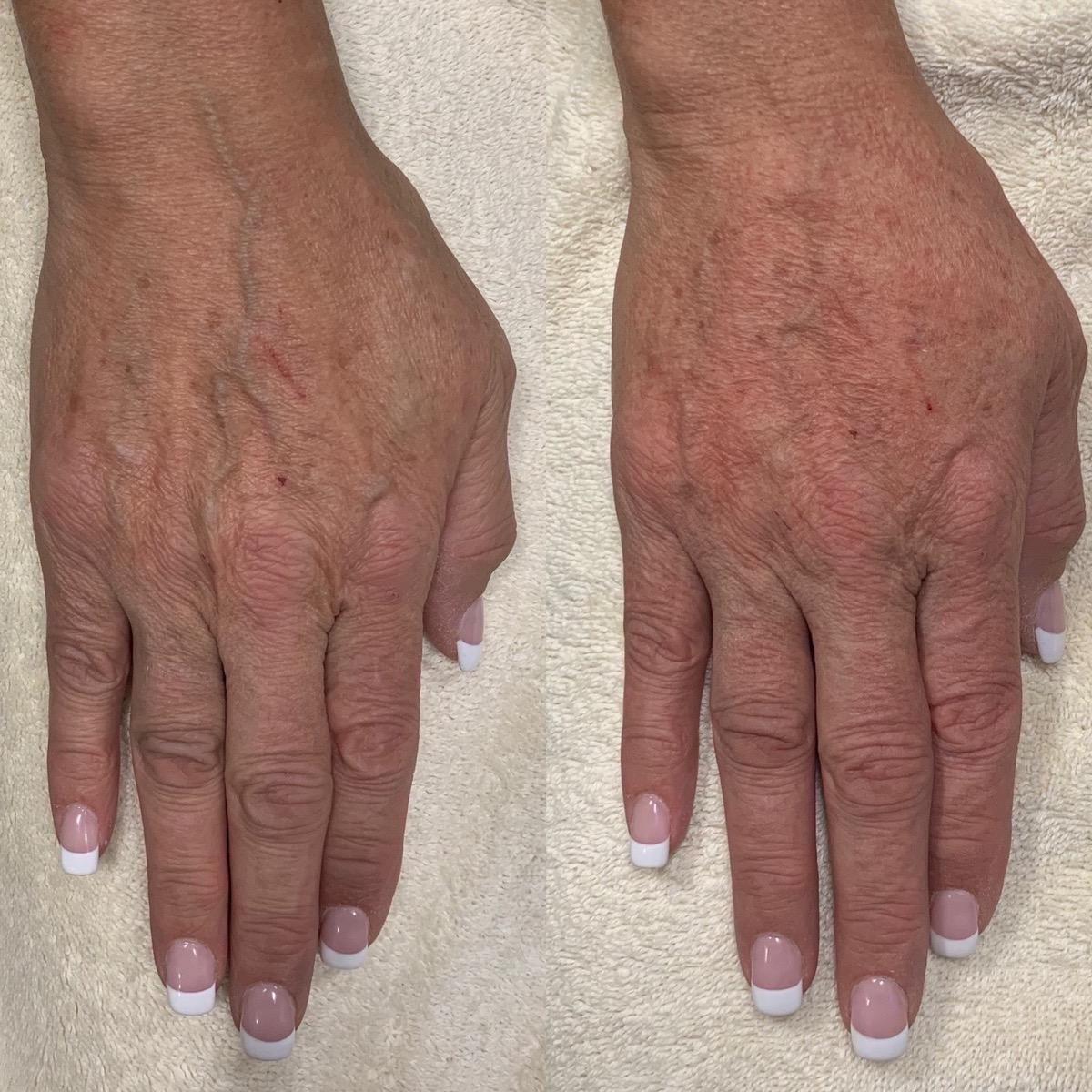 Hand Gallery - Patient 3199416 - Image 2