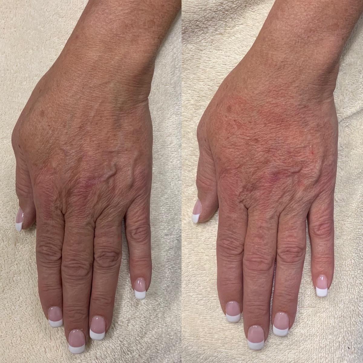 Hand Gallery - Patient 3199417 - Image 3