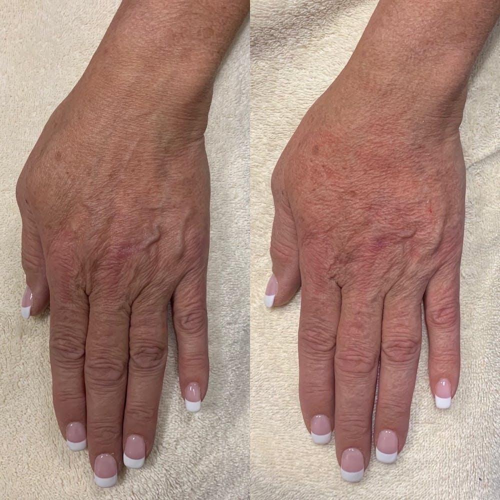 Hand Gallery - Patient 3199417 - Image 1