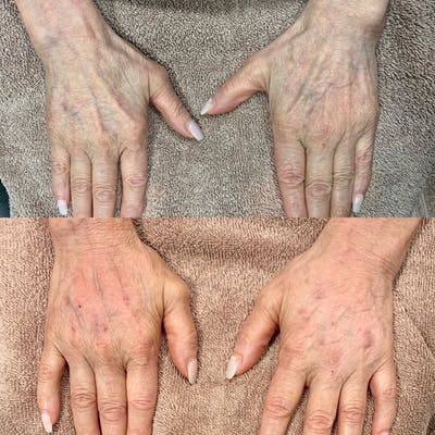 Hand Gallery - Patient 3199418 - Image 1