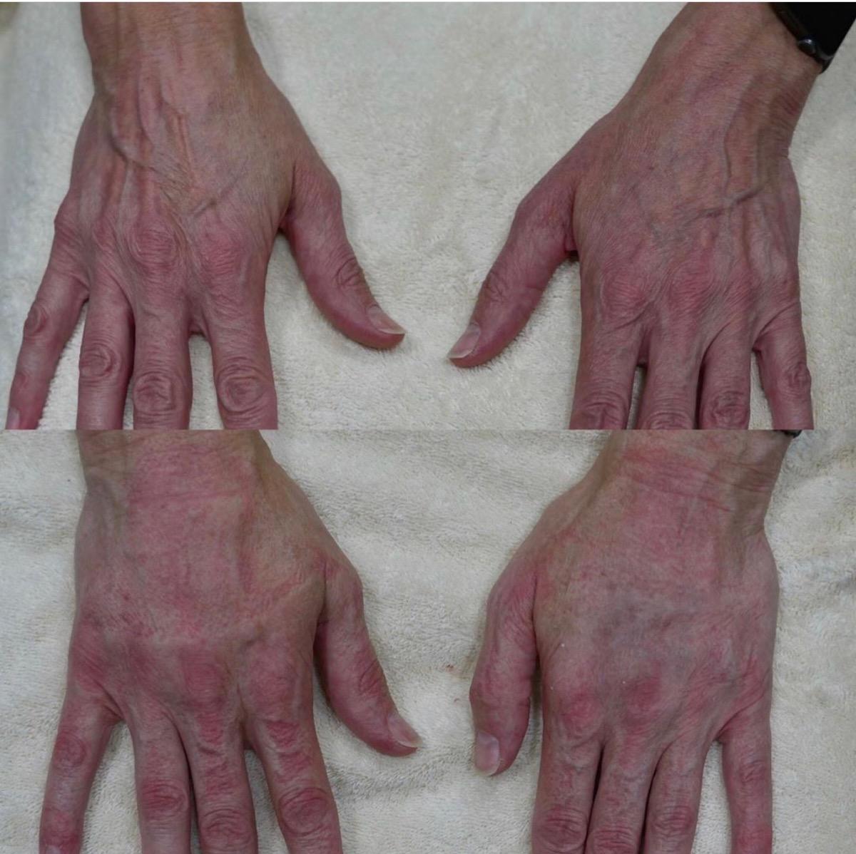Hand Gallery - Patient 3199419 - Image 5