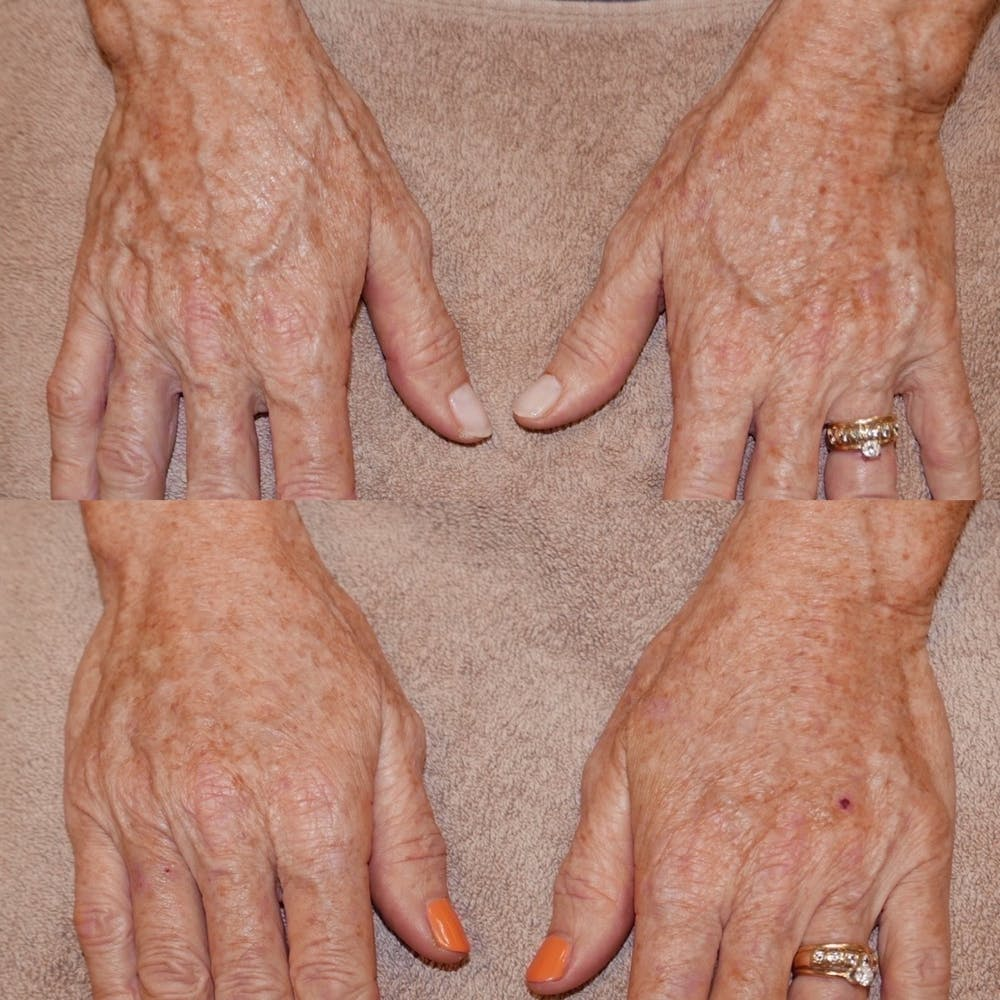 Hands Gallery - Patient 3199445 - Image 1
