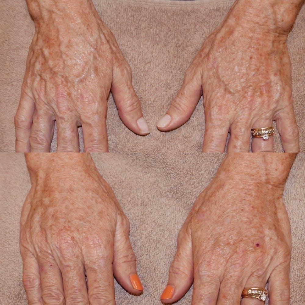Hand Gallery - Patient 3376161 - Image 1