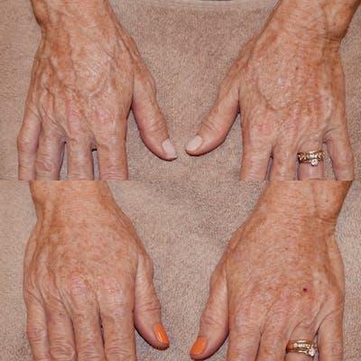 Hands Gallery - Patient 3199445 - Image 1