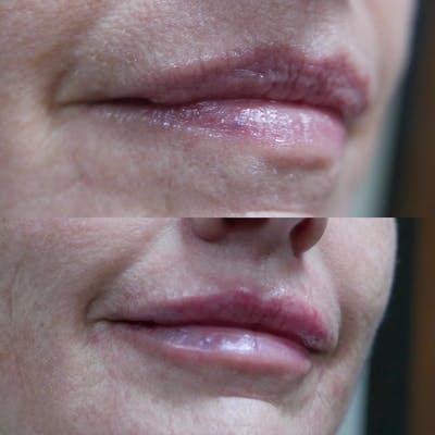 Lips Gallery - Patient 3199627 - Image 1