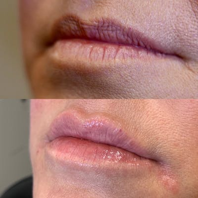 Lips Gallery - Patient 3199628 - Image 1