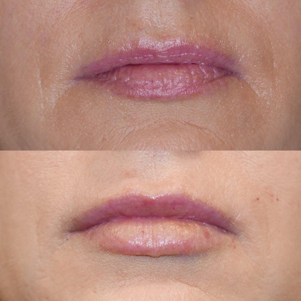 Lips Gallery - Patient 3199629 - Image 1