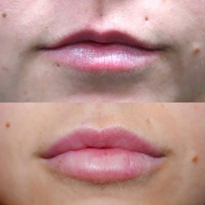 Lips Gallery - Patient 3199630 - Image 1