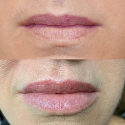 Lips Gallery - Patient 3199631 - Image 1