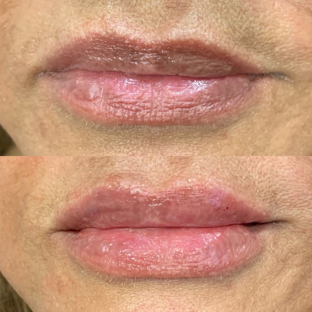 Lips Gallery - Patient 3199632 - Image 1