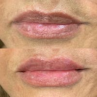 Lips Gallery - Patient 3199632 - Image 1