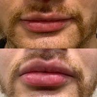 Lips Gallery - Patient 3199633 - Image 1