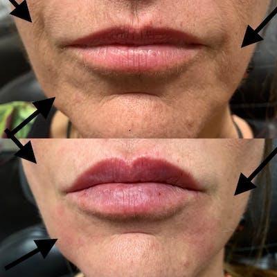 Lips Gallery - Patient 3199634 - Image 1