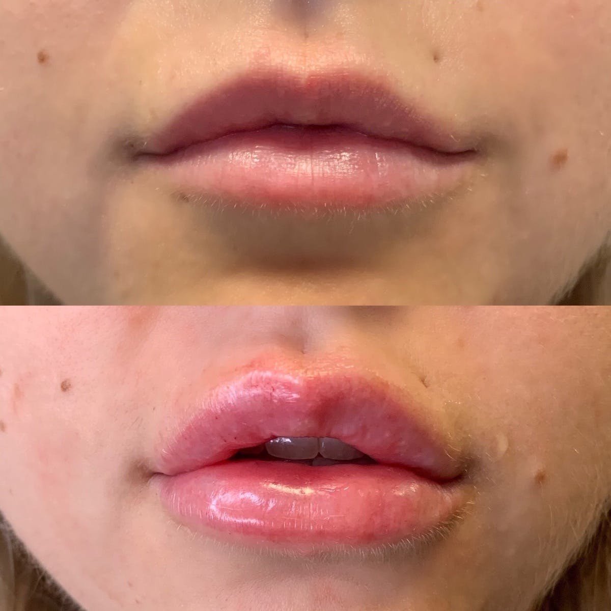 Lips Gallery - Patient 3199635 - Image 1