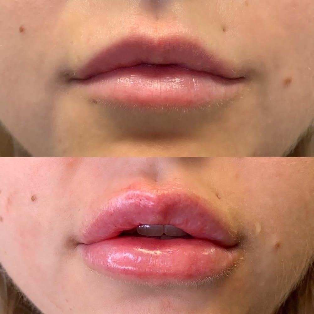 Lips Gallery - Patient 3199635 - Image 1