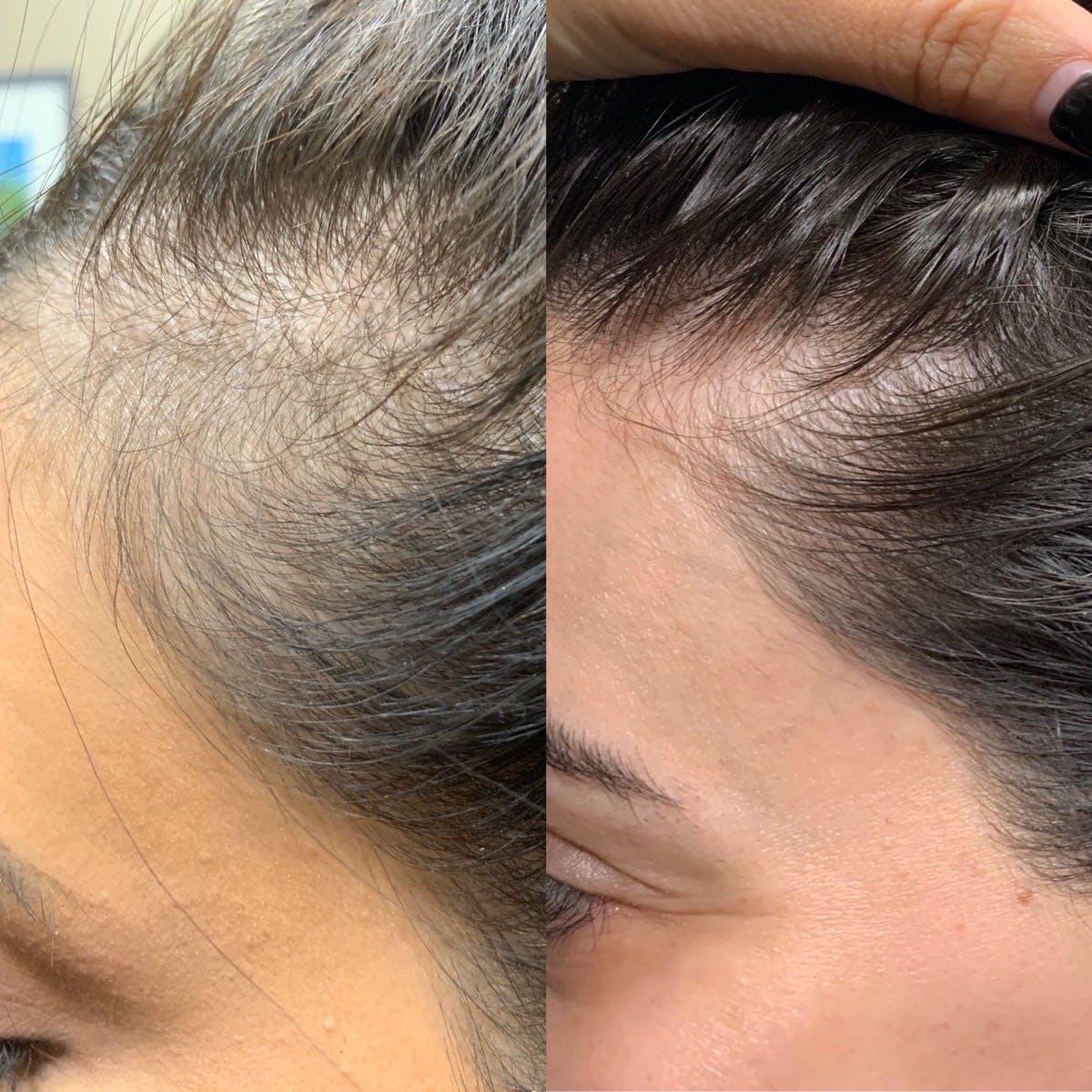 PRP Hair Gallery - Patient 3199662 - Image 1
