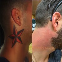 Tattoo Removal Gallery - Patient 3199809 - Image 1