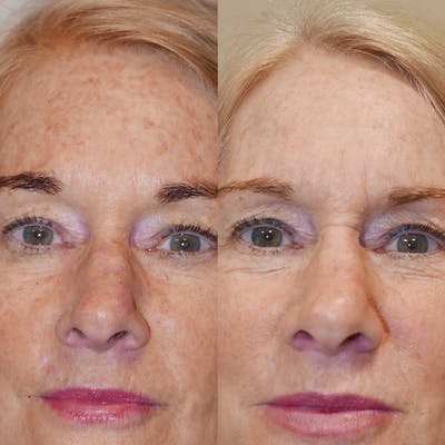 Chemical Peel Gallery - Patient 3376119 - Image 1