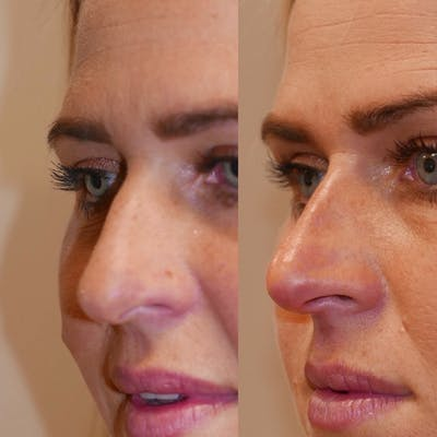 Nose Gallery - Patient 3376190 - Image 1