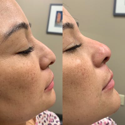 Nose Gallery - Patient 3376192 - Image 1