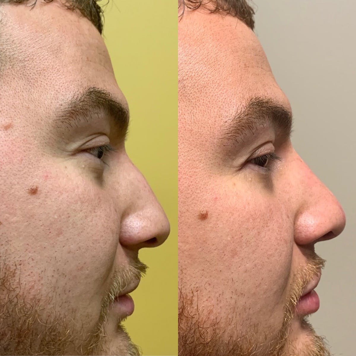 Nose Gallery - Patient 3376193 - Image 1