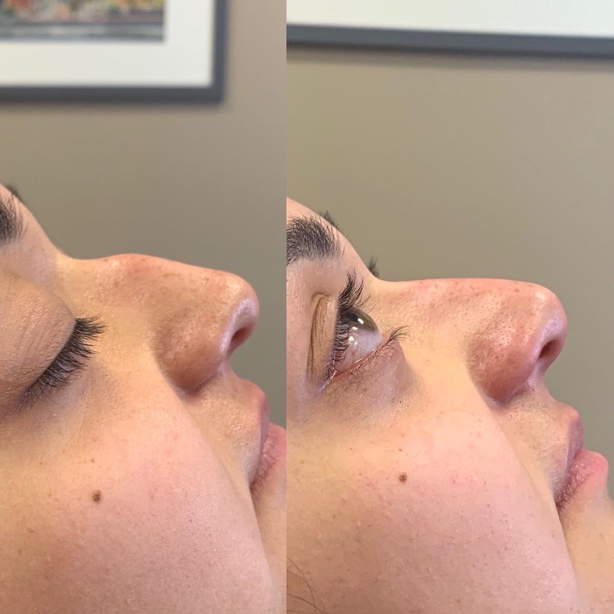 Nose Gallery - Patient 3376194 - Image 1