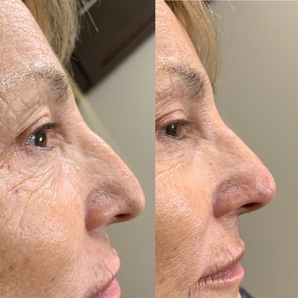 Nose Gallery - Patient 3376195 - Image 1
