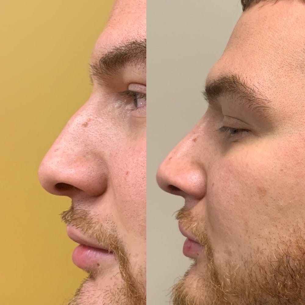 Nose Gallery - Patient 3376196 - Image 1