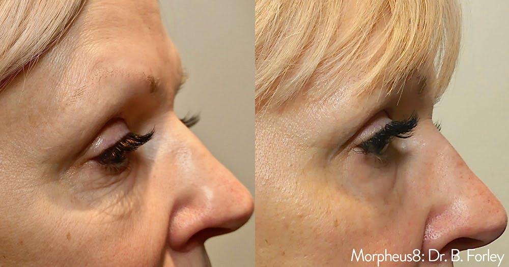 Morpheus 8 Laser Gallery - Patient 4489339 - Image 1