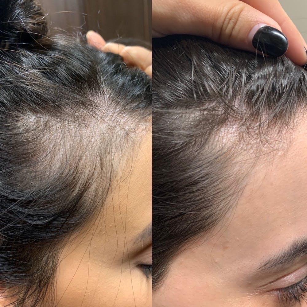 PRP Hair Gallery - Patient 3199662 - Image 2