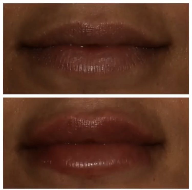 Lips Gallery - Patient 5809365 - Image 1