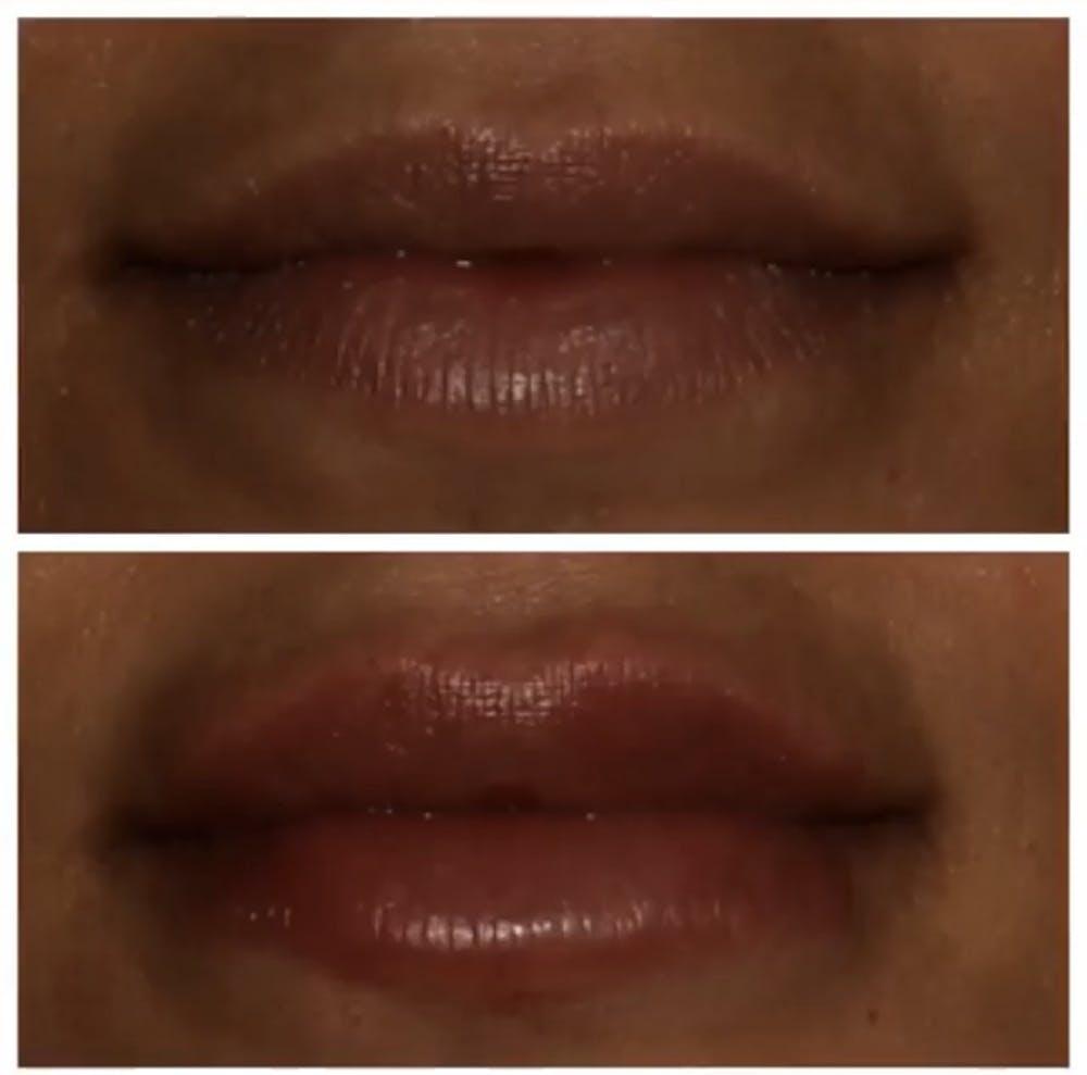 Lips Gallery - Patient 5809365 - Image 1