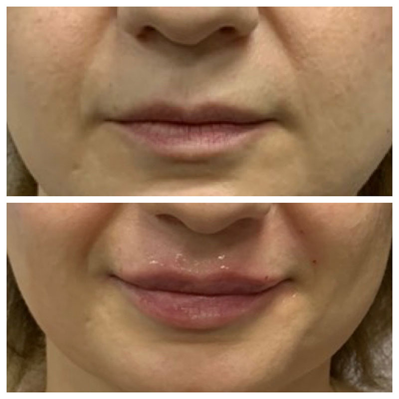 Lips Gallery - Patient 5891074 - Image 11