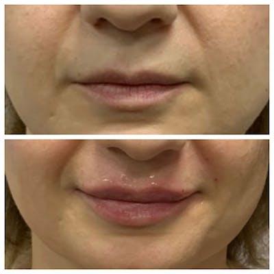 Lips Gallery - Patient 5891074 - Image 1