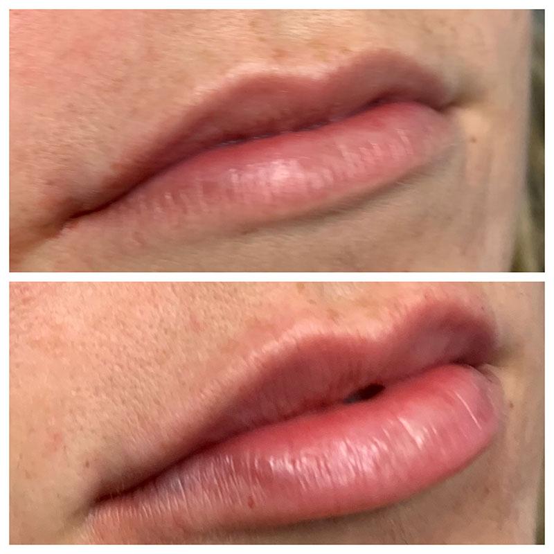 Lips Gallery - Patient 5891075 - Image 12