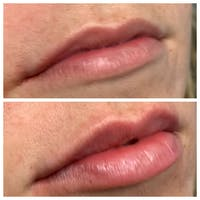Lips Gallery - Patient 5891075 - Image 1