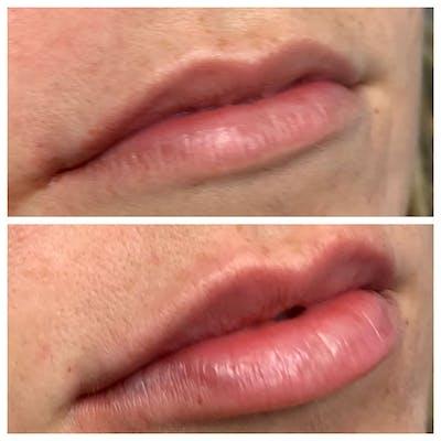 Lips Gallery - Patient 5891075 - Image 1