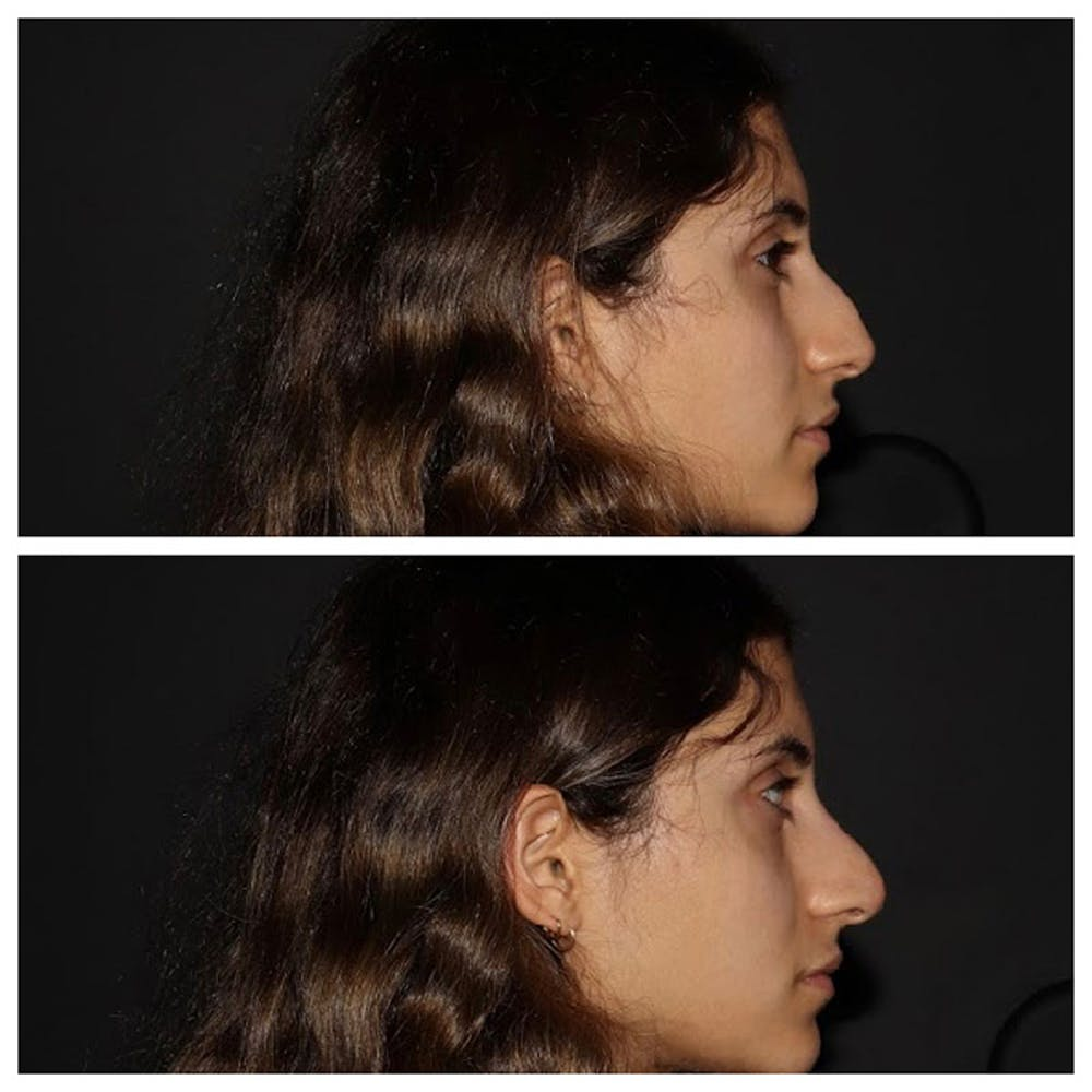 Nose Gallery - Patient 5930598 - Image 1