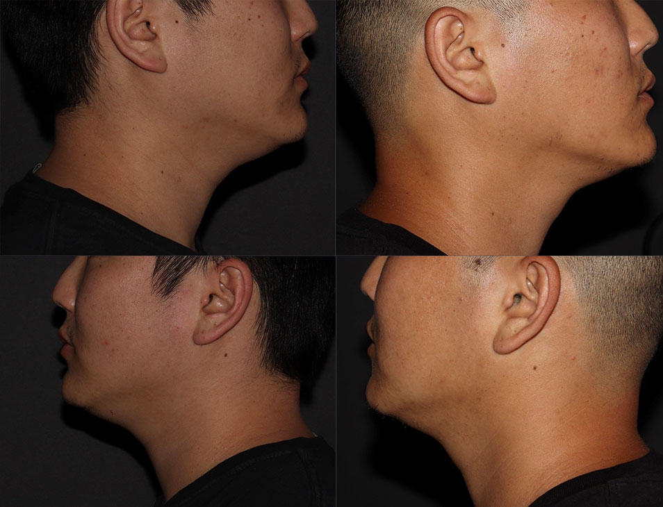 Jawline Gallery - Patient 6096363 - Image 6