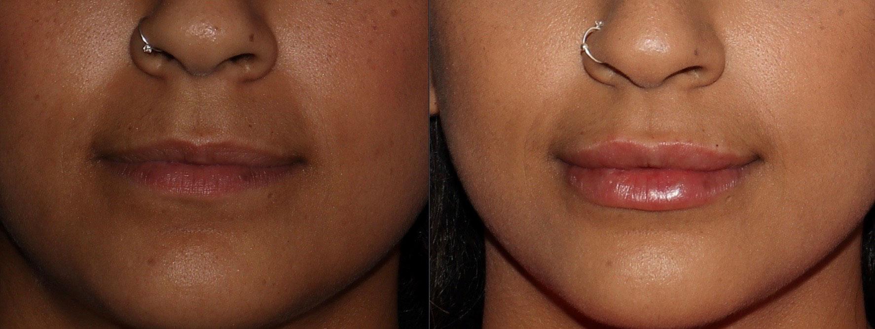 Lips Gallery - Patient 6096527 - Image 13