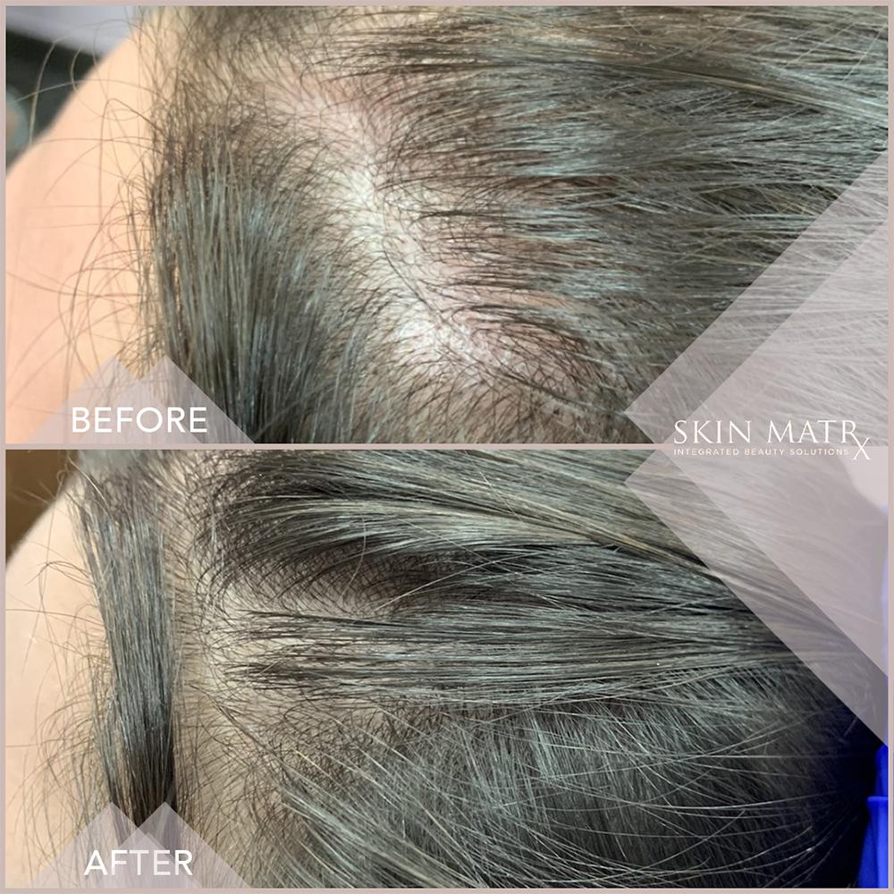 PRP Hair Gallery - Patient 16859175 - Image 4
