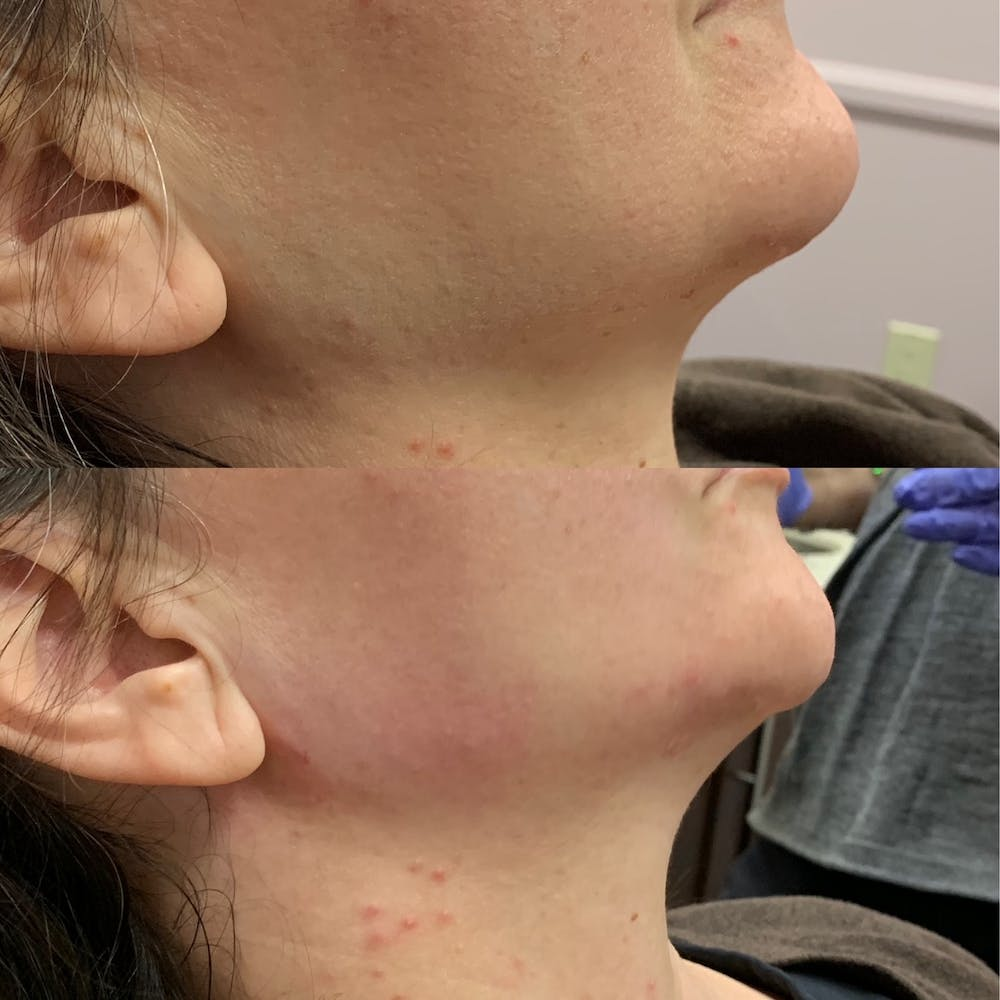 Jawline Gallery - Patient 54039829 - Image 1