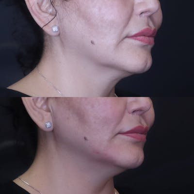 Jawline Gallery - Patient 54039830 - Image 1