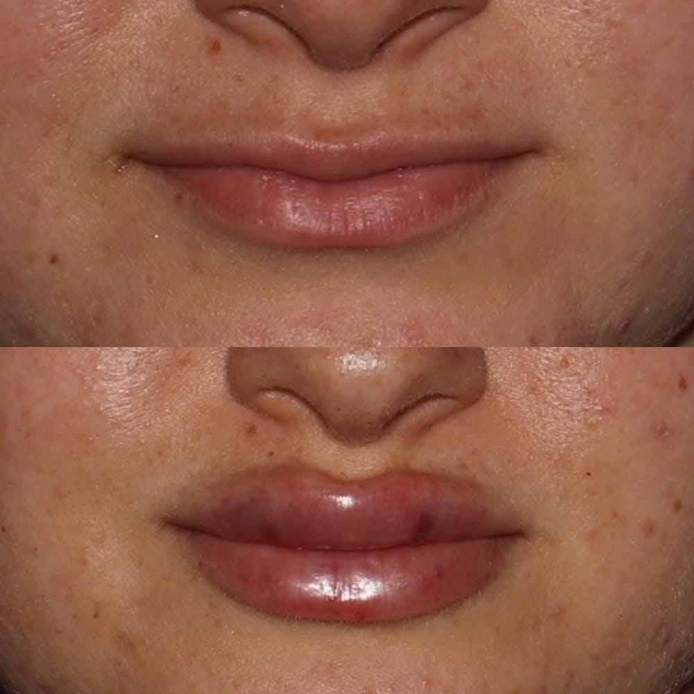 Lips Gallery - Patient 54039851 - Image 1