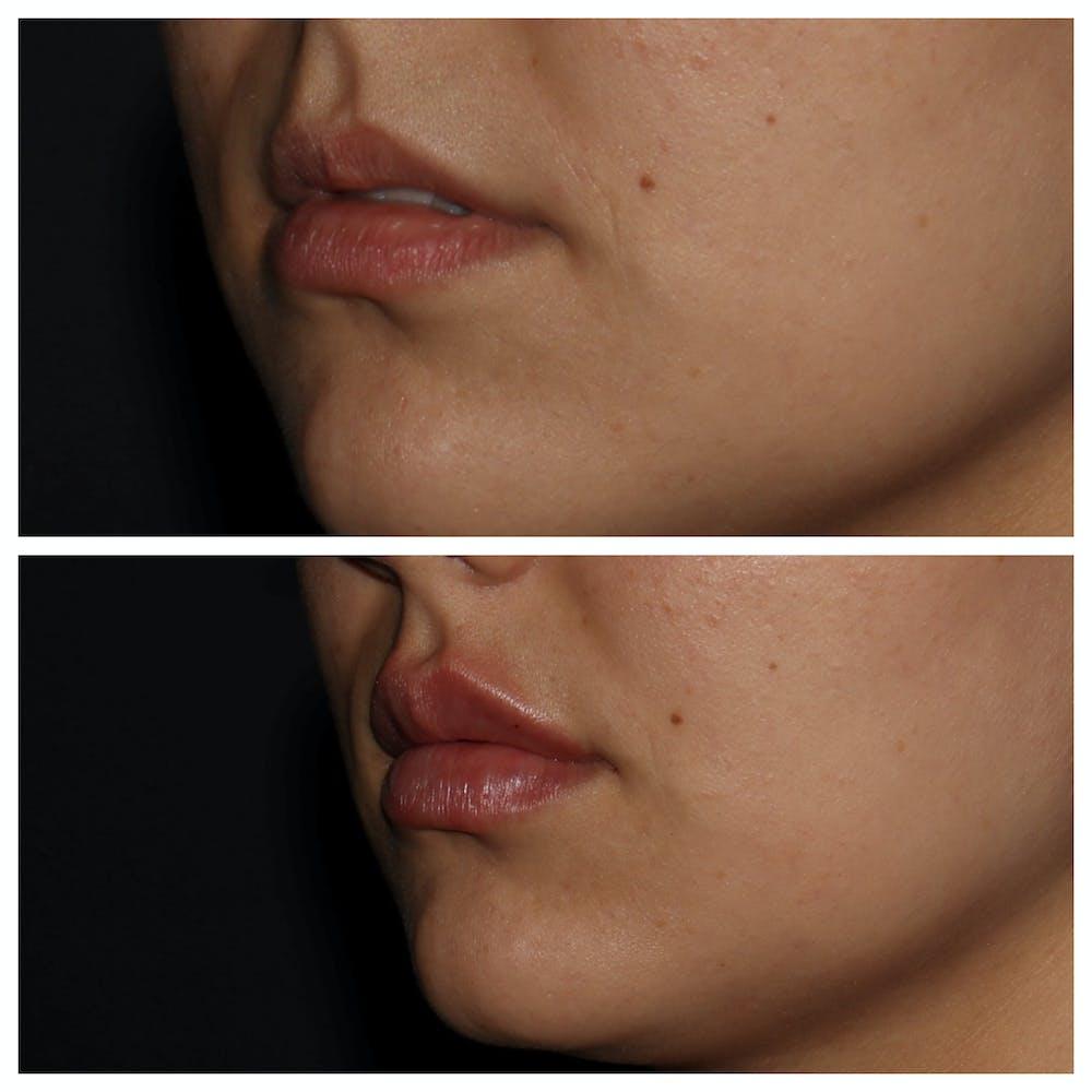 Lips Gallery - Patient 54039852 - Image 1