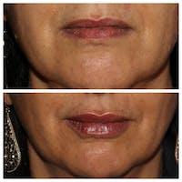 Lips Gallery - Patient 54039853 - Image 1