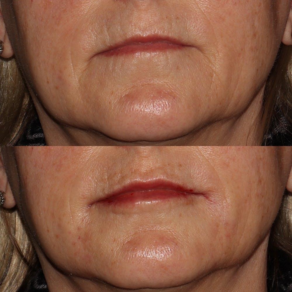 Lips Gallery - Patient 54039855 - Image 1