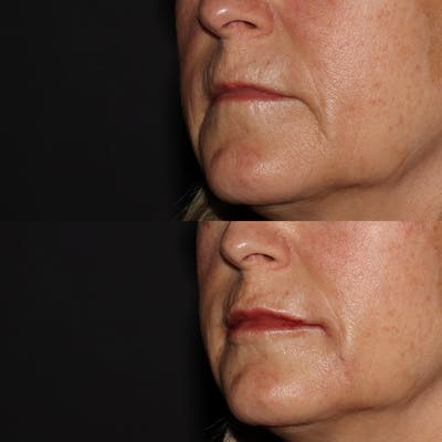 Lips Gallery - Patient 54039855 - Image 2