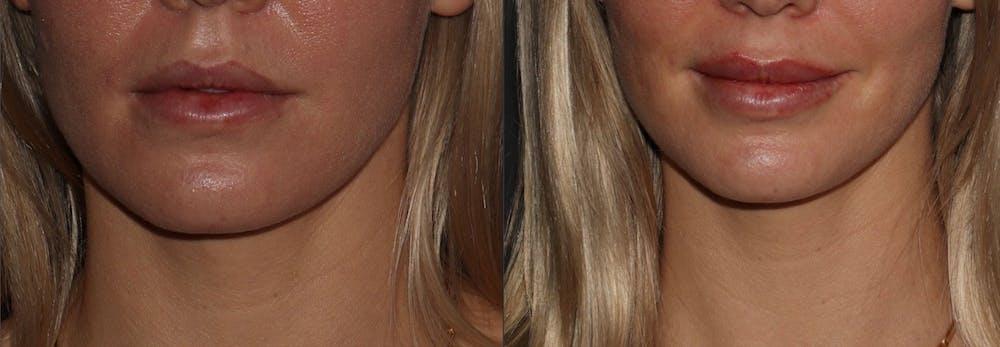 Lips Gallery - Patient 6096529 - Image 1