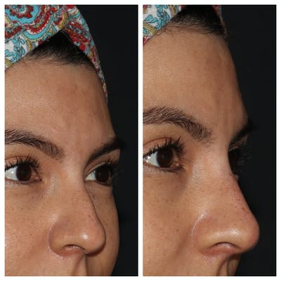 Nose Gallery - Patient 54039859 - Image 1